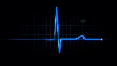 ที่มาภาพ : http://ak0.picdn.net/shutterstock/videos/630883/preview/stock-footage-a-stylized-look-at-an-empty-emergency-room.jpg